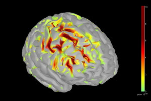 Brain_epileptic_activity